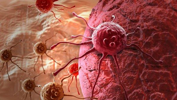 Maioria dos casos de câncer acontece por 'má sorte'