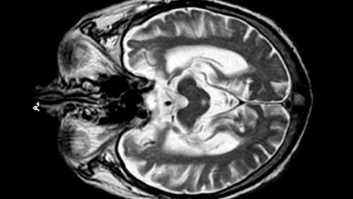 Crescem as evidências de que o Alzheimer pode ser transmissível