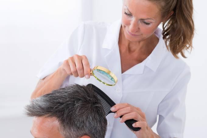 Calvície: conheça as causas e os tratamentos